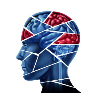 Brain Injury, Attorney, California